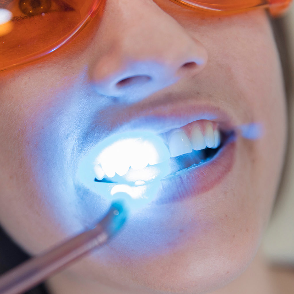Reform-Dentistry-COSMETIC-DENTISTRY-Teeth-Whitening-service